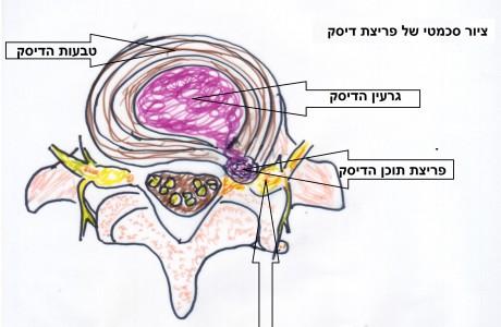פיזיותרפיה לבלט דיסק בעמוד השדרה הצווארי