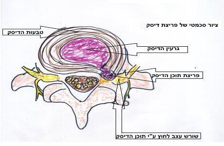טיפול בבלט דיסק צווארי