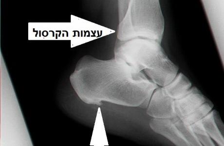 שבר בקרסול Ankle Fracture – תרגילי פיזיותרפיה